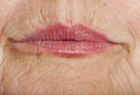 Interventi di chirurgia estetica labbra,bocca - Padova