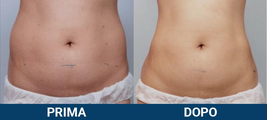 Scizer - liposuzione senza chirurgia, non chirurgica caso clinico 2 prima e dopo