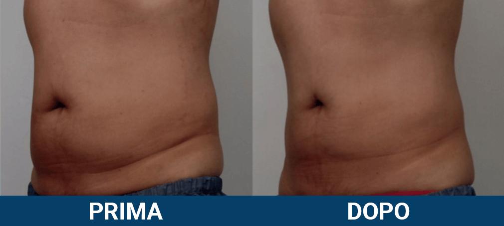 Scizer - liposuzione senza chirurgia, non chirurgica caso clinico 3 prima e dopo