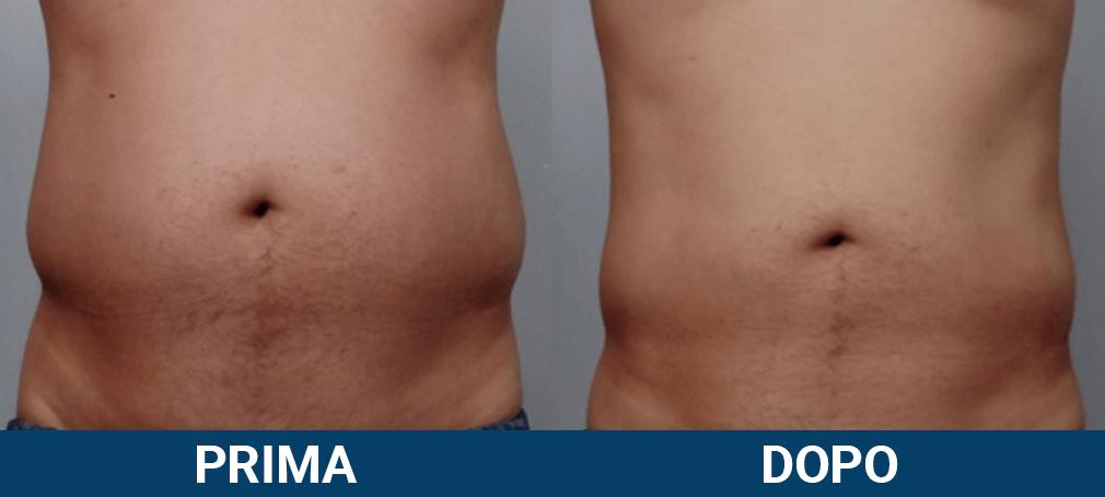 Scizer - liposuzione senza chirurgia, non chirurgica caso clinico 7 prima e dopo