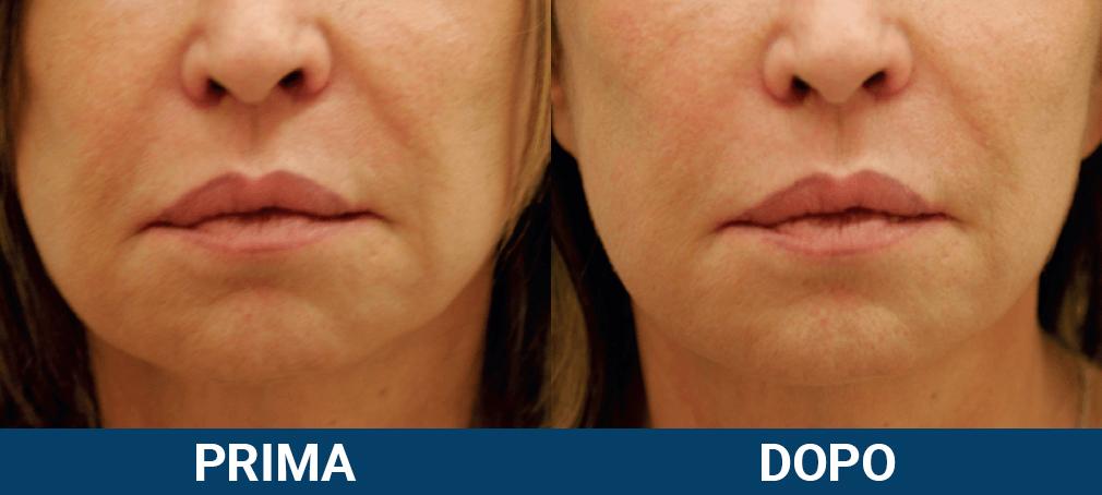 Ultraformer 3 - lifting viso non chirurgico caso clinico 1 prima e dopo