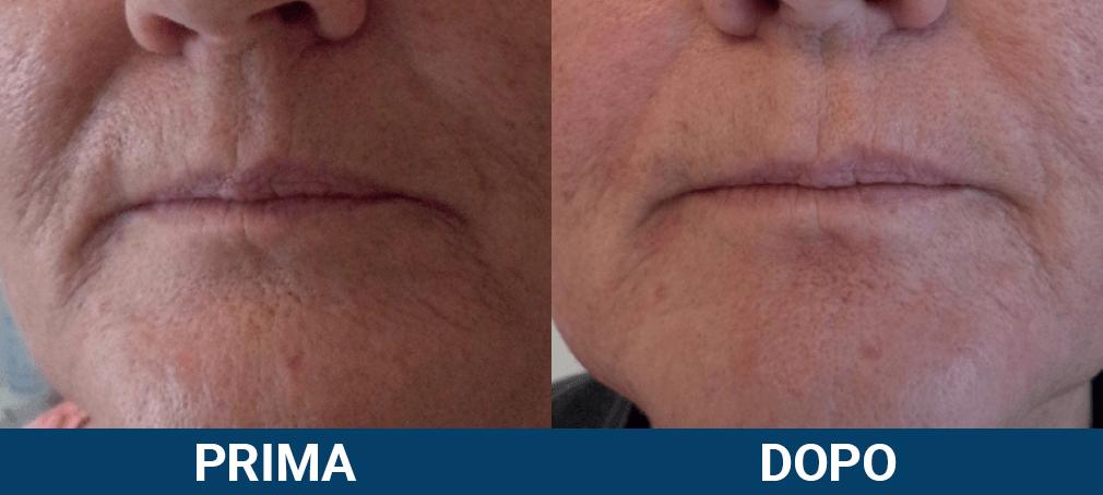 Ultraformer 3 - lifting viso non chirurgico caso clinico 2 prima e dopo