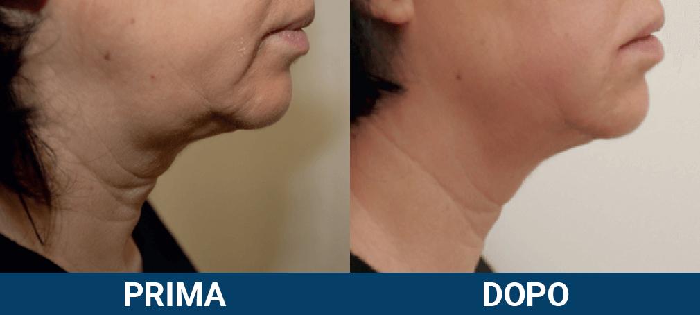 Ultraformer 3 - lifting viso non chirurgico caso clinico 3 prima e dopo