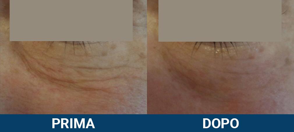 Ultraformer 3 - lifting viso non chirurgico caso clinico 6 prima e dopo