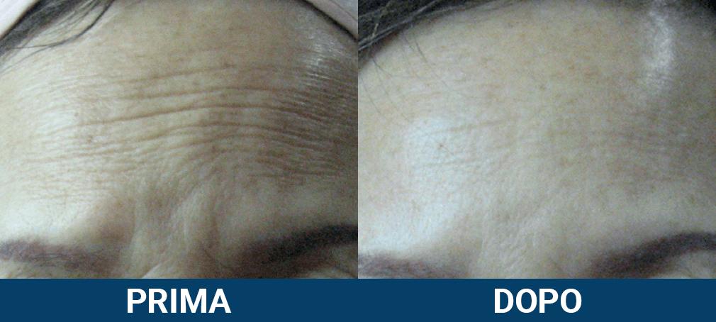 Ultraformer 3 - lifting viso non chirurgico caso clinico 7 prima e dopo